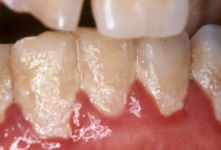teeth with dental plaque